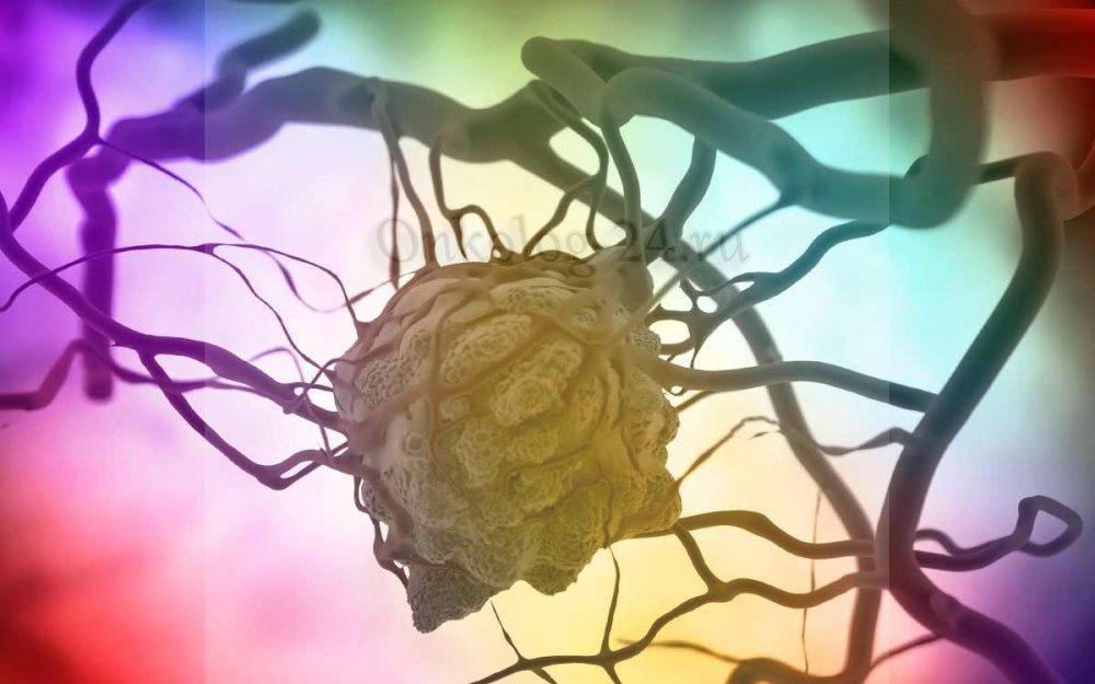 neoperabelnyy rak