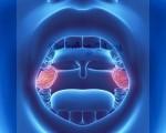 Рак миндалин (гланд) – характеристика патологии, симптомы, лечение и реабилитация