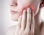 Рак щеки – кто находится в группе риска, стадии и фазы заболевания, подход к лечению