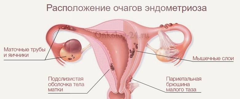 diagnostika retrotservikalnogo endometrioza