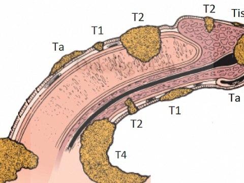 stadii raka polovogo chlena
