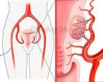 Эмболизация маточных артерий при миоме матки (ЭМА)