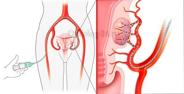 Embolizatsiya matochnykh arteriy pri miome matki