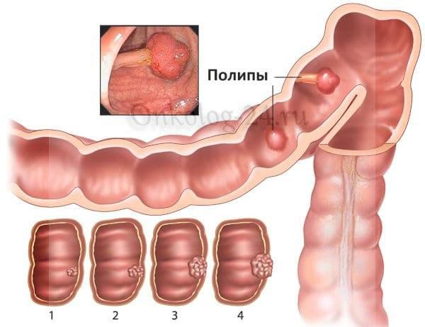 Simptomy polipov v kishechnike