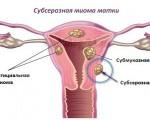 Субсерозная миома матки: почему возникает, чем опасна, методы диагностики и лечения