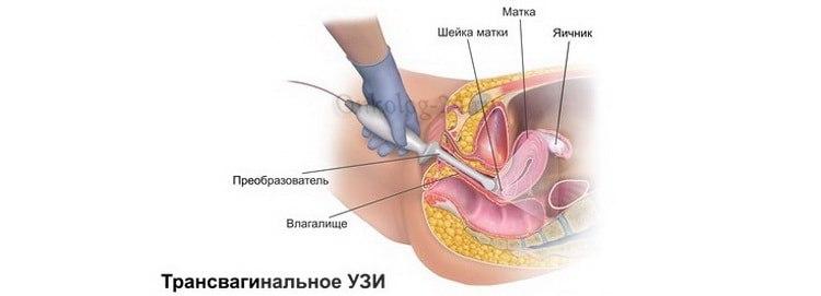 Transvaginalnoye UZI