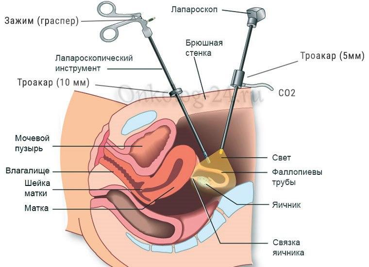 laparoskopiya miomy matki