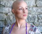Как быстро восстановить рост волос, ресниц и бровей после химиотерапии?