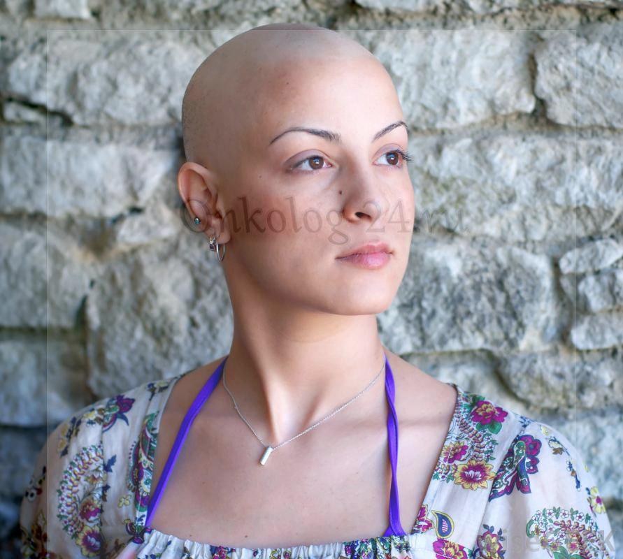 volosy posle khimioterapii