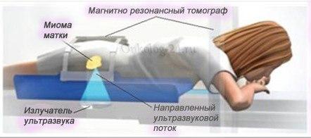 FUZ-ablyatsiya pri miome matki