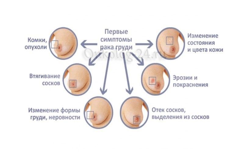 simptomy opukholi v grudi